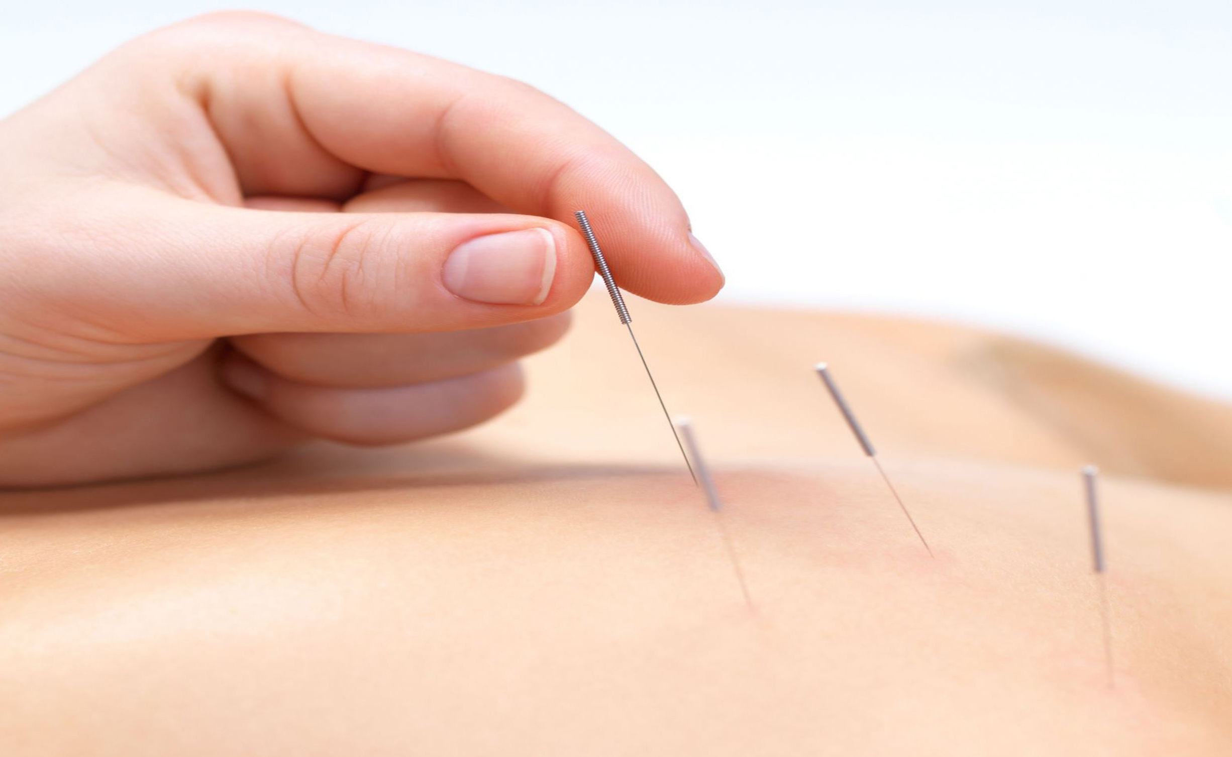 fort lauderdale acupuncture