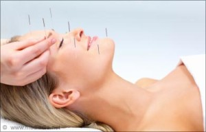 Acupuncture Treatment for Headaches